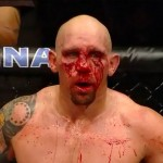 Carwin_bloody_face_large